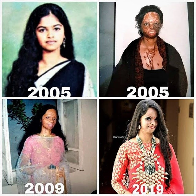 Laxmi before and after
